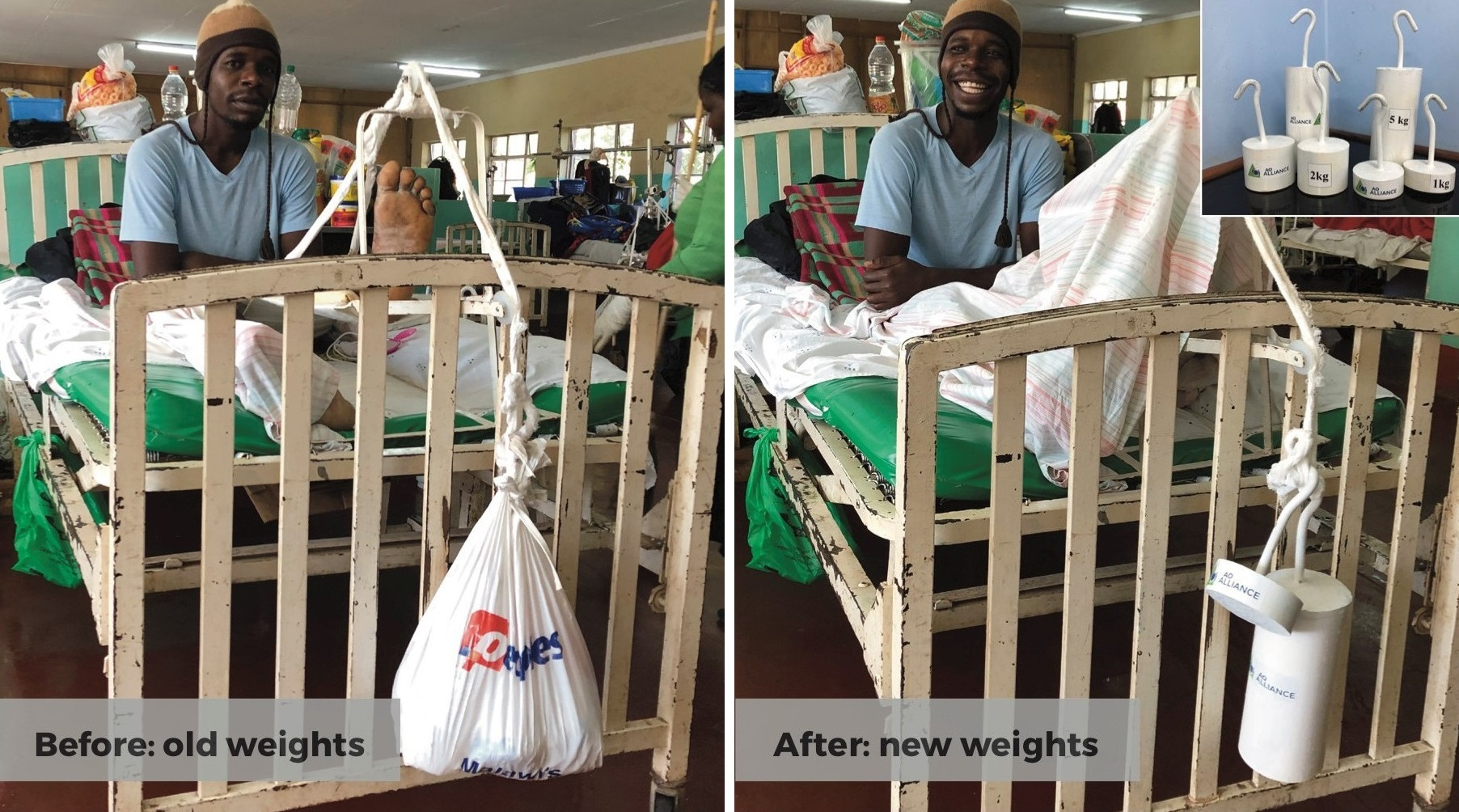 Traction weights for injured patients in Malawi