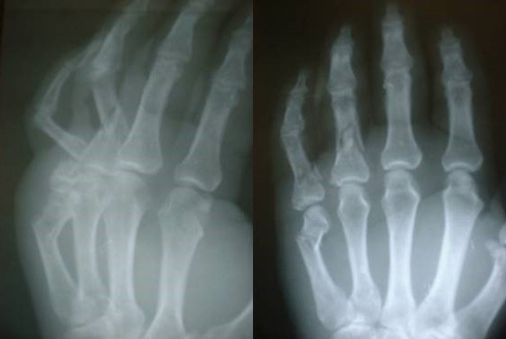 Hand surgery in sub-Saharan Africa: research survey invitation